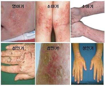 영아기 소아기 성인기에 따른 아토피성 피부염 예시