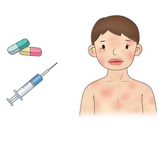 처방받은 주사 및 알약으로 인한 온몸에 약물발진이 일어난 아이