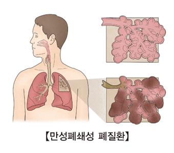 만성폐쇄성 폐질환의 예시