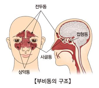 부비동의구조 상악동,사골동,접형동,전두동의 위치
