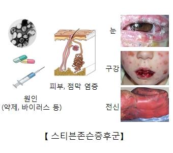 스티븐존슨증후군 원인(약제 바이러스 등)및 피부 점막 염증 및 눈 구강 전신에 일어난 스티븐존슨증후군 예시