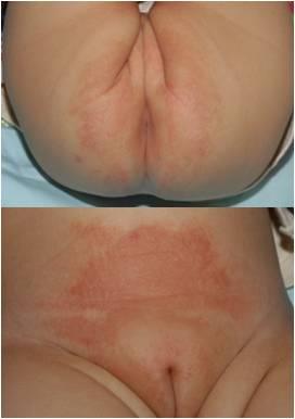 화학물질로 인해 접촉성 피부염을 겪는 유아