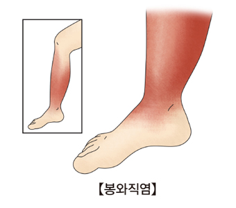 다리쪽 봉와직염의 예시