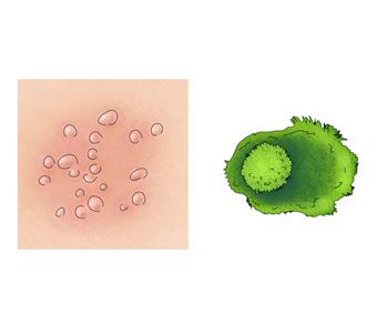 헤르페스바이러스에의해 홍반과포진을일으킨피부와 헤르페스바이러스예시