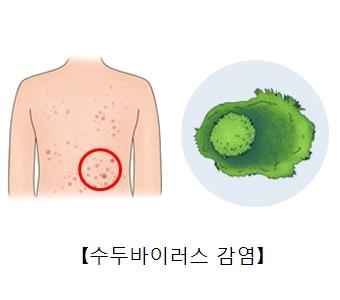 수두바이러스와 수두바이러스 감염으로 인한 대상포진의 예시