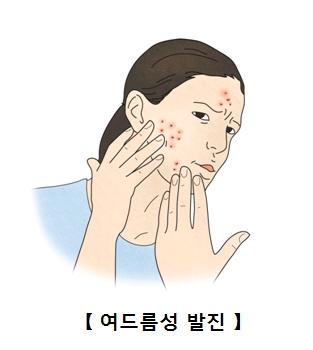 여드름성 발진으로 인해 고통스러워 하는 여성
