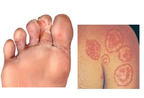 발가락 및 가슴주변의 곰팡이 감염 예시