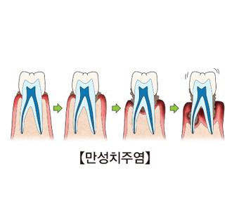 만성 취주염이 발생되며 잇몸에 미치는 과정을 예시