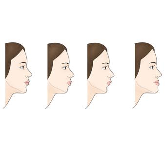 턱끝왜소증에 따른 얼굴형태의 차이의 예시