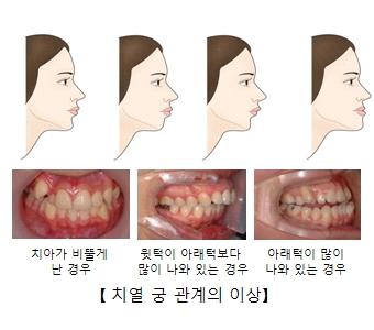 치아가 비뚫게 난 경우 윗턱이 아태럭보다 많이 나와 있는 경우 아래턱이 많이 나와 있는 경우의 치열 궁 관계의 이상 차이점 예시