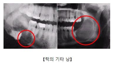 턱주변 기타낭을 찍은 x-ray사진