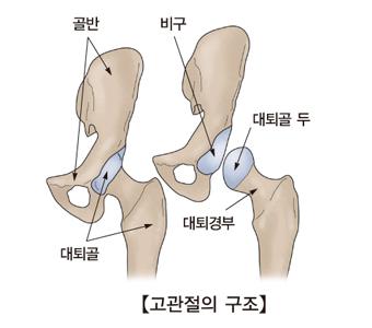 고관절의구조및 골반,대퇴골,대퇴경부,대퇴골 두,비구의 위치