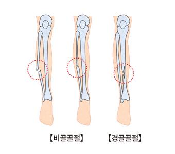 비골골절과경골골절의 사진 예시