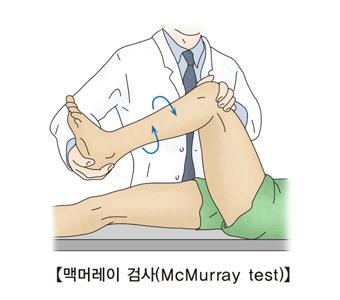 의사가 환자에게 맥머레이 검사를 하고있음