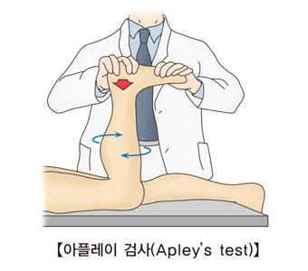 의사가 환자에게 아플레이 검사를 하고있음