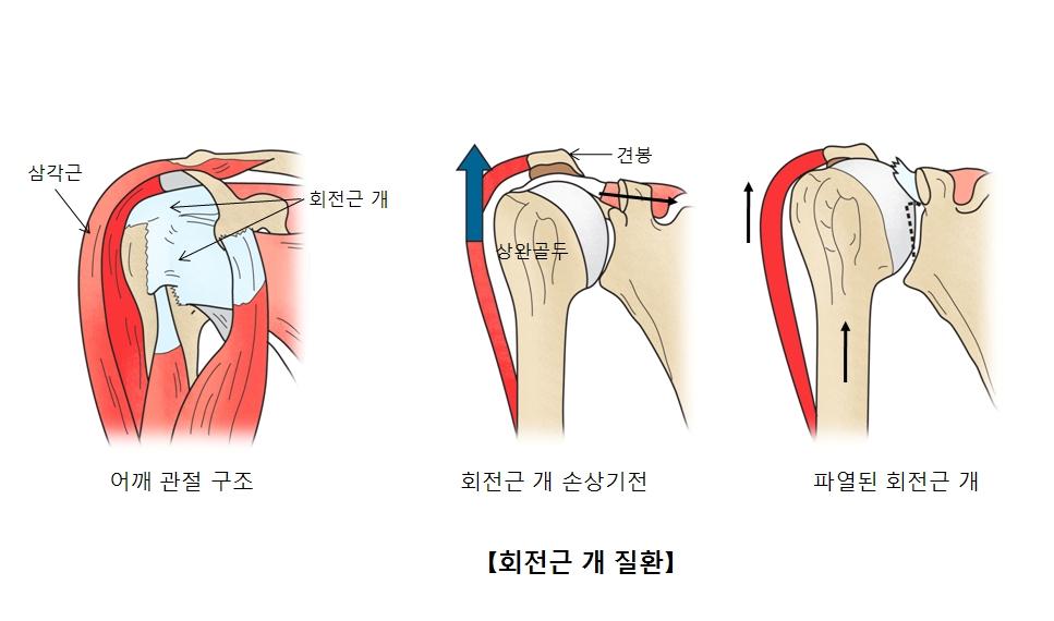 어깨관절구조및 삼각근 회전근 개 위치, 회전근 개 손상기전및 상완골도 견봉위치, 파열된회전근 개