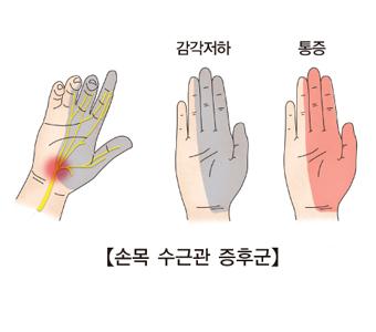 손목 수근관 증후군 사진 예시(감각저하,통증)