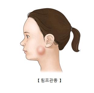 여성 턱선에 림프관종이 생긴 예시