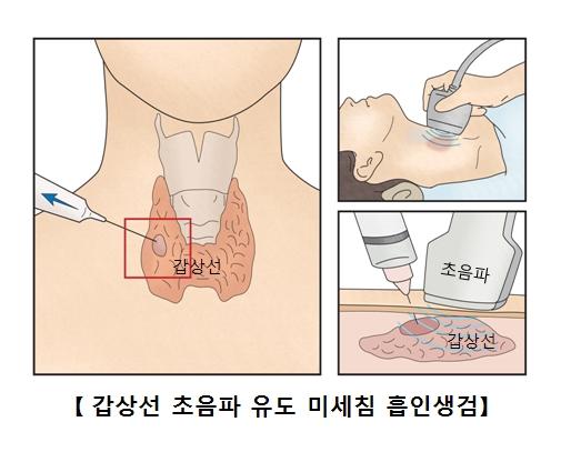 갑상선 초음파 유도 미세침 흡인생검의 예시