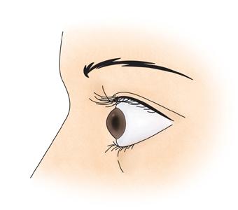 갑상선 중독증으로 눈이 돌출된 여성의 예시