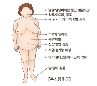 쿠싱증후군-얼굴:달덩이처럼 둥근얼굴 모양, 얼굴:여드름및홍조, 목 뒤와 어깨:히아지방 조직, 피부가앏아짐, 복부:비만, 신장:혈압상승, 자궁:성기능이상, 다리:골다공증이나 근력약화, 발:멍이잘듦