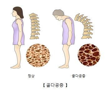 정상여성과척추그림예시및 조직세포 사진예시(오른쪽), 노인여성의 척추그림예시및 조직세포 사진예시(왼쪽)