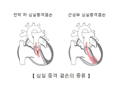 판막 하 심실중격결손과 근성부 심실중격결손등 심실중격 결손의 종류 예시
