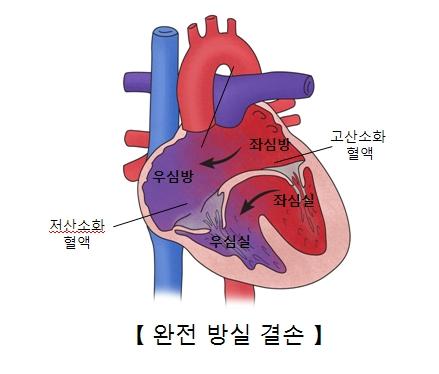 좌심방 우심방 좌심실 우심실의 위치및 저산소화 혈액및 고산소화혈액등으로 인한 완전방실결손의 예시