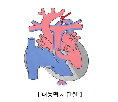 대동맥궁 단절의 예시