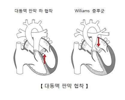 대동맥 판막 하 협착 과 Williams증후군등 대동맥 판막 협착의 예시