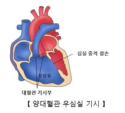 우심실 심실중격결손 대혈관 기시부 위치등 양대혈관 우심실 기시의 예시