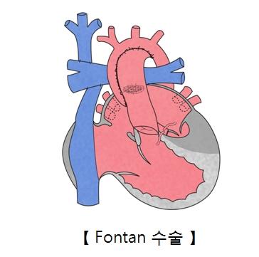 Fontan 수술의 예시