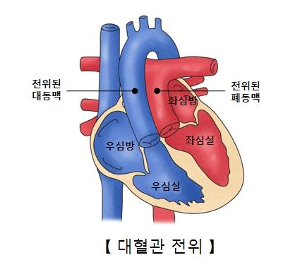 좌심방 좌심실 전위된 폐동맥 우심방 우심실 전위된 대동맥의 위치및 대혈관 전위의 예시
