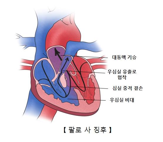 대동맥 기승 우심실 유출로 협착 심실 중격 결손 우심실 비대의 진행 방향및 팔로 사 징후의 예시