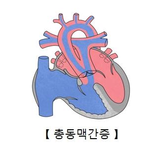 총동맥간증의 예시