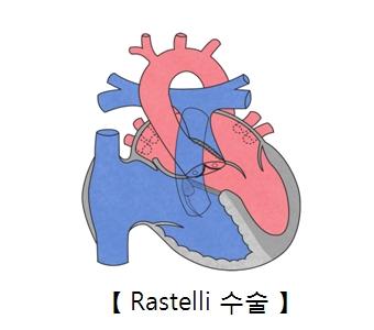 Rastelli 수술의 예시