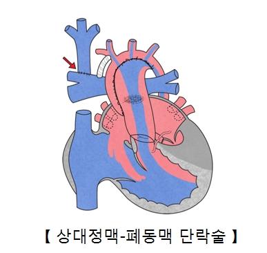 상대정맥 폐동맥 단락술의 예시