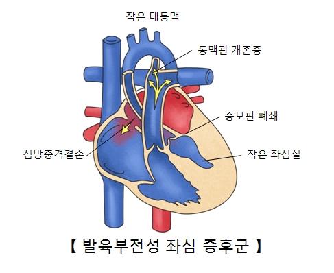 작은대동맥 동맥관 개존증 승포판 폐쇄 작은 좌심실 심방중격결손의 위치와 발육부전설 좌심 증후군의 예시