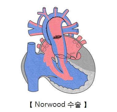 Norwood 수술의 예시