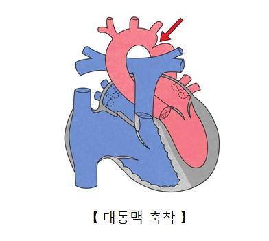 대동맥 축착의 예시