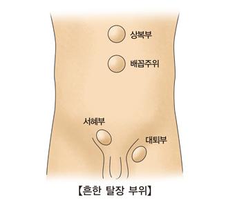 상복부 배꼽주위 서혜부 대퇴부등 흔한 탈장 부위의 예시