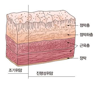 점막층 점막하층 근육층 장막등으로 이루워진 위의 구조와 조기위암 및 진행성위암의 예시