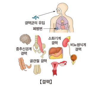 결핵균의 유입 폐병변 중추신경계 결핵 소화기계 결핵 골관절 결핵 비뇨생식계 결핵의 예시