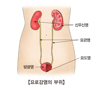 신우신염 요관염 요도염 방광염등 요로감염의 부위 예시