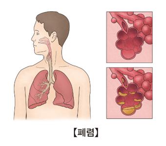 폐렴의 예시