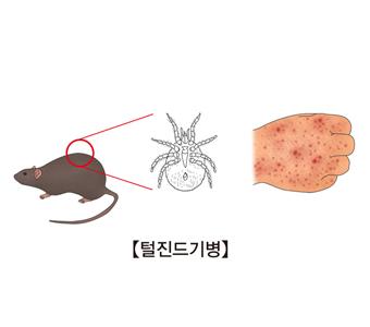 들쥐와진드기 털진드기병에감염된 손등