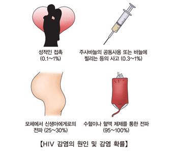 HIV감염의원인및감염확률 성적인접촉(0.1%~1%) 주사바늘의공동사용또는바늘에찔리는등의사고(0.3%~1%) 모체에서신생아에게로의전파(25%~30%) 수혈이나혈액제제를통한전파(95%~100%)