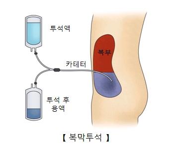 투석액을 카테터를 통해 복부쪽으로 투입하여 투석후 용액을 받아내는 복막투석의 예시