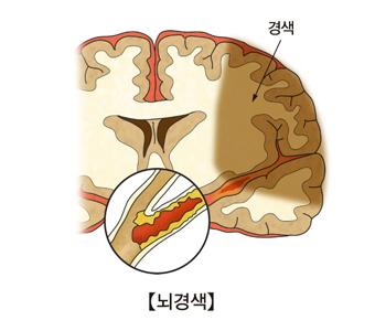 경색및 뇌경색의 예시