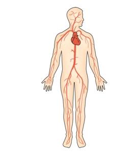 혈관염의 예시